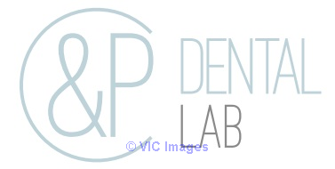 Comfortable night guards Ontario - C&P Dental Lab Toronto - GTA, Ontario Classifieds